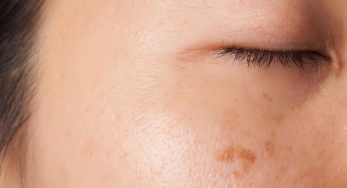 Le laser des taches de pigment sur le corps