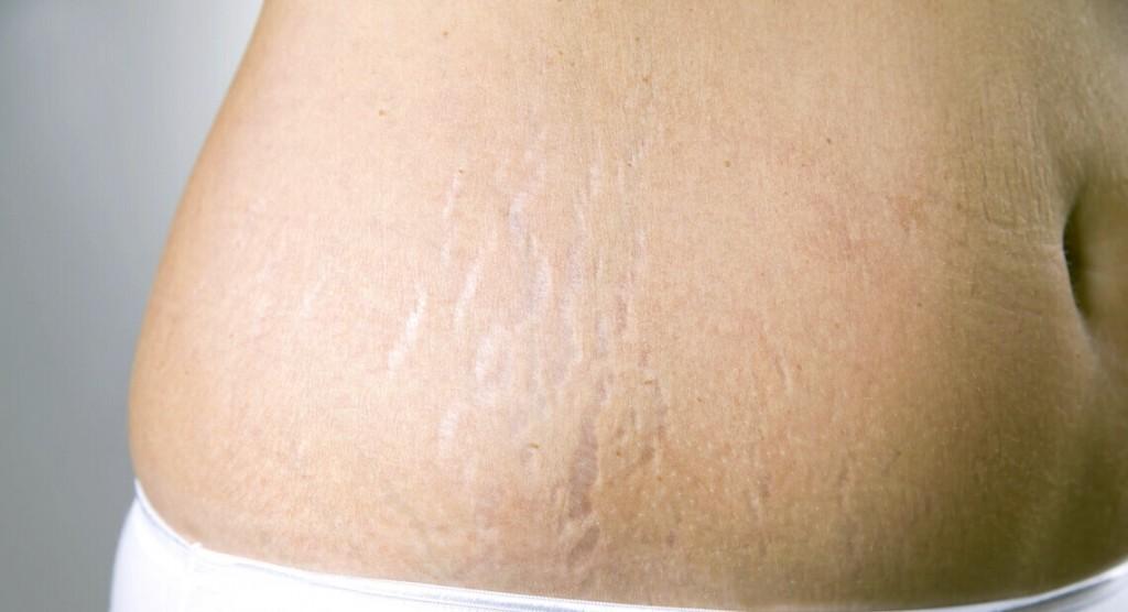 Femme ayant des vergetures sur les hanches.