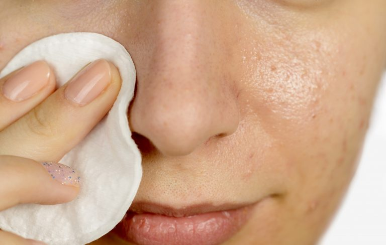 enlever cicatrice acne