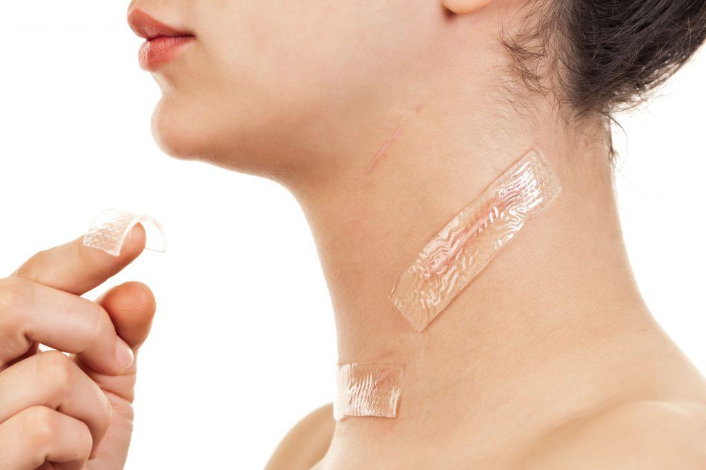 traitement naturel cicatrice
